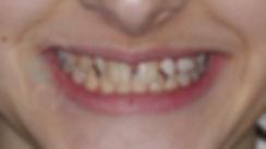 Case of the week - 1st of 2019 - Braces Toronto Orthodontist