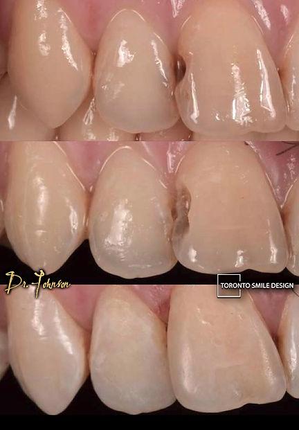 Dental Filling - Tooth Filling Cost.jpeg