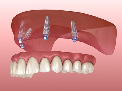 All-on-4 Dental Implants: The Perfect Alternative to Removable Dentures