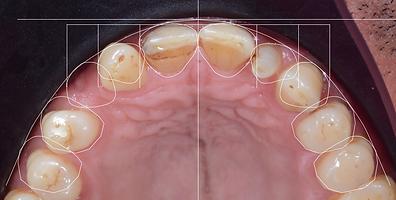 diş estetiği ve gülüş tasarımı uygulamaları dijital gülüş tasarımı