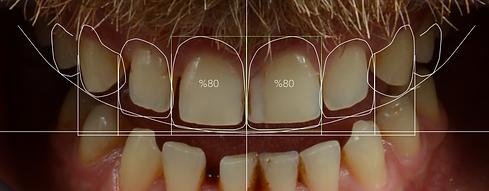 diş boşlukları, aralık dişler, diastema, boşluk dişler