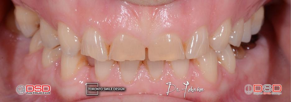 Toronto Cosmetic Dentistry - Smile Design Treatment Plan.jpeg
