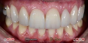 Toronto Dentist - Toronto Cosmetic Denti