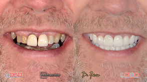 Smile Makeover Case with All-ceramic Crowns by Cosmetic Dentist Dr.Johnson Ozgur