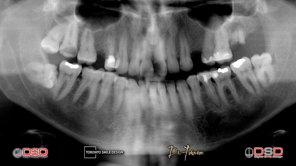 dental implant cost - toronto dental implants - dental implants near me.jpeg