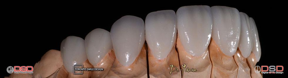 Porcelain Veneers Toronto - Best Cosmetic Dentist specialist Toronto.jpeg