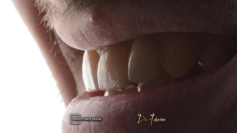 How long do dental implants last - denta