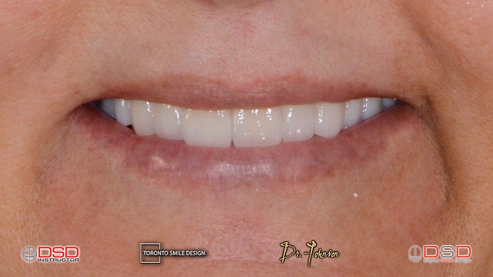 TorontoCosmetic Dentistry - Toronto Porcelain Crowns.jpeg
