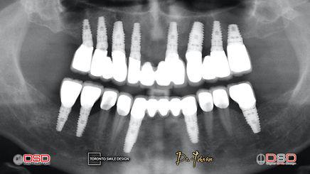Toronto Dental Implants - Oral Surgeon Toronto