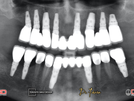 Dental Implant Maintenance: Improve your Implants' Lifespan