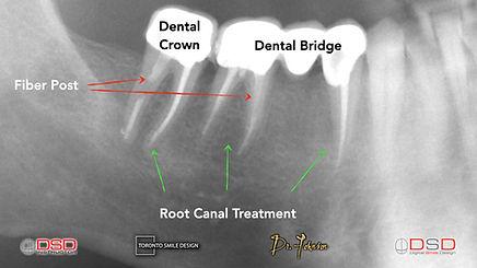 Root Canal Toronto - Toronto Dentist.jpeg
