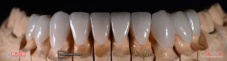 Porcelain Veneers Toronto - Best Cosmetic Dentist Near Me.jpeg