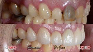 midline deviation teeth - fixing diastem