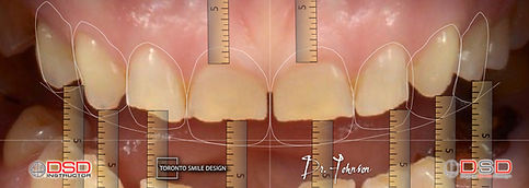 Cosmetic Dentistry Toronto - Toronto Dentist.jpeg