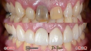teeth gap filling - Porcelain Crowns Tor
