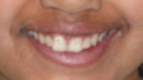 orthodontic case 4 before treatment portrait smile picture toronto orthodontist Emel Arat's Case