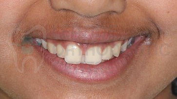 orthodontic case 4 before treatment portrait smile picture toronto orthodontist Emel Arat's Case