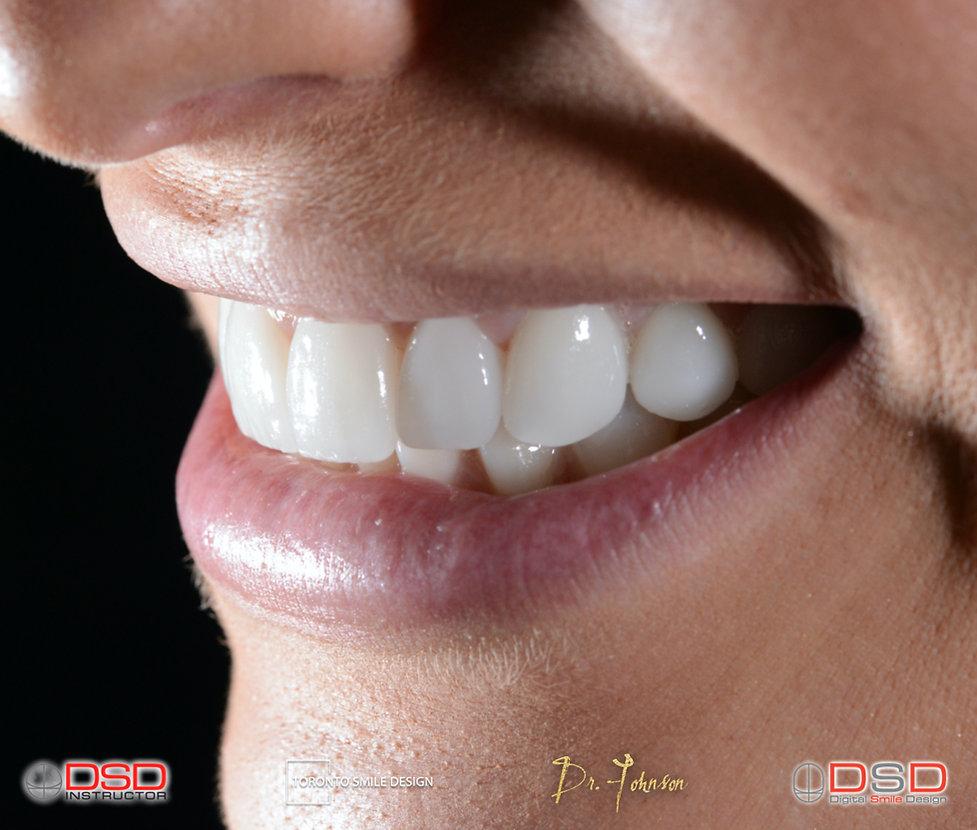 Cosmetic Dentist Toronto Case - Veneer T
