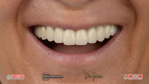 dental implants near me - dental implants yorkville.jpeg