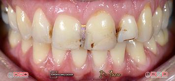 Cosmetic Dental Rehabilitation Toronto -
