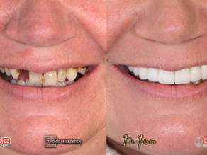 How Much Does It Cost For A Smile Makeover?