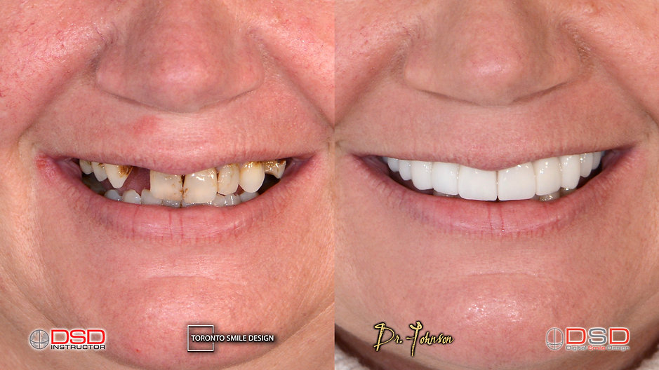 Dental Bridge - Smile Design - Dental Crown.jpeg