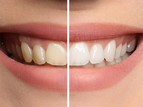 Teeth Whitening in Toronto - Perfect Smile with Zoom!®