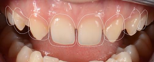 Dentist Toronto - Smile Make Over - Digital Smile Design Toronto