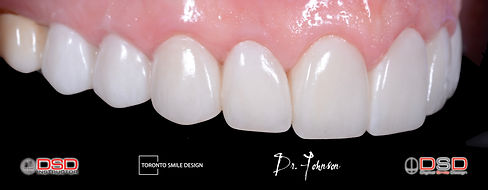 Toronto Cosmetic Dentistry - Laser Gum Contouring - Dental Crowns.jpeg