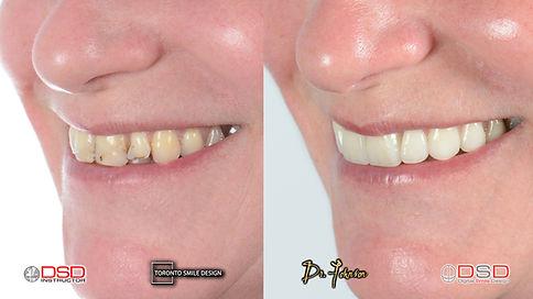 Toronto Cosmetic Dentist - Smile Design