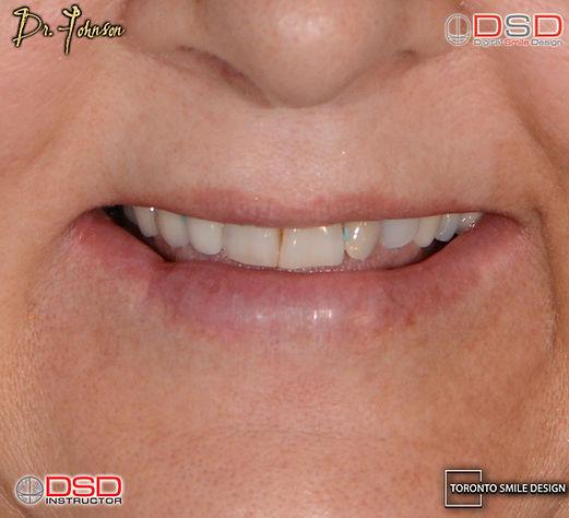 Cosmetic Dentistry Toronto - Porcelain Crowns_edited.jpg
