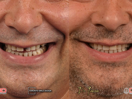 Single Tooth Implants: The Best Solution for Replacing a Missing Tooth?
