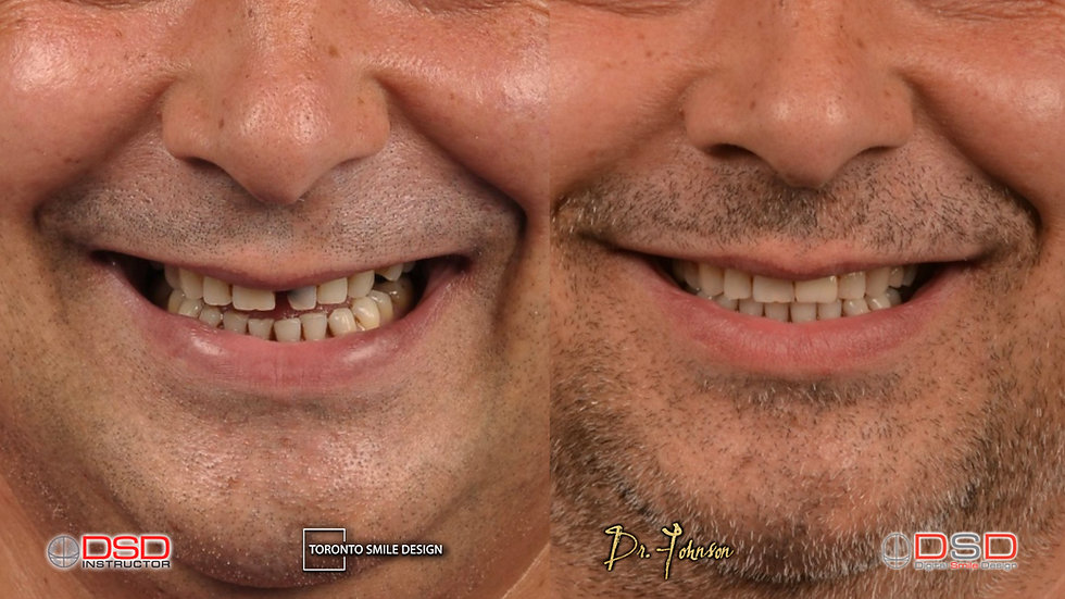 dental implants - how much are dental implants - toronto dental implants - dental implant
