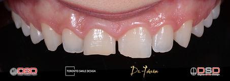 gum contouring toronto - Crown Lengtheni