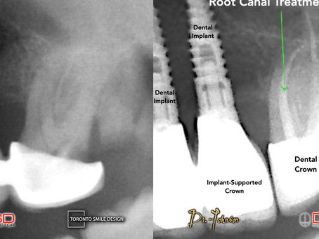 Root Canal: Ultimate Solution for Tooth Pain