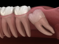 Wisdom Teeth Recovery: Expectations, post-operative care, and healing after surgery