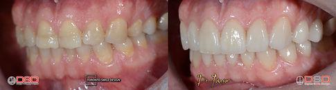 Porcelain Veneers Toronto - Best Cosmetic Dentist Toronto.jpeg