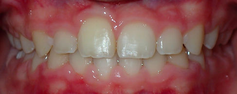 after intraoral pictures of orthodontic missing teeth case