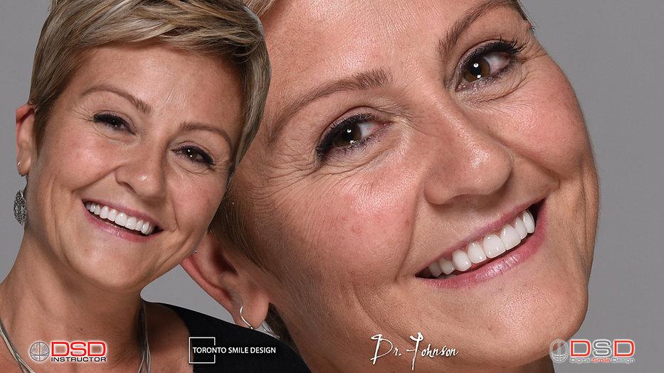 Digital Smile Design Toronto - Smile Makeover - Smile Rehabilitation.jpeg