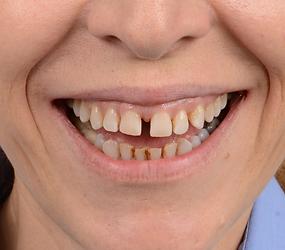 digital smile design öncesi gülüş nasıl gözüküyordu