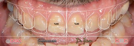 Veneer Toronto - Cosmetic Dentistry Toronto.jpeg