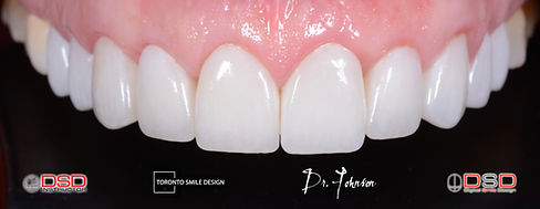 Smile Transformation - Smile Design.jpeg