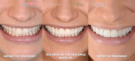 Cosmetic Dentist Toronto Case -  Porcelain Veneers Toronto - Treatment.jpeg