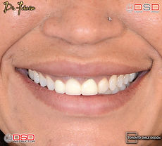 Cosmetic Dentist Toronto - Veneer Toronto - Porcelain Crowns Toronto.jpeg
