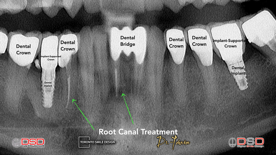 Root Canal Cost - Toronto Dentist.jpeg