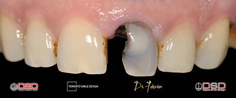 dental implant cost for one tooth - toronto dental implants - dental implant cost_edited.j