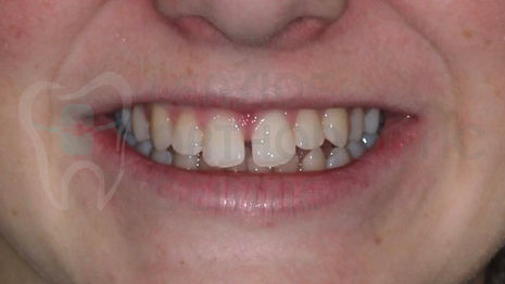 initial smile of the patient before the orthodontic treatment - by toronto orthodontist Dr.Emel Arat
