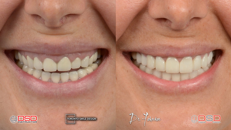 Smile Transformation Before and After.jpeg