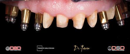 Smile Design with Dental Implants Full Mouth Rehabilitation.jpeg