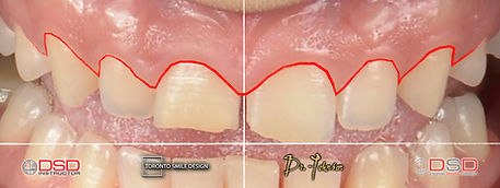 how long does crown lengthening take to